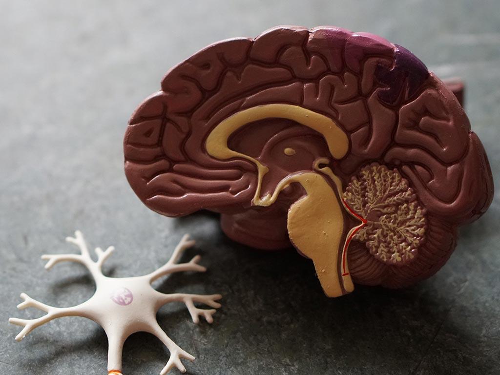 Dr. Jose Pizarro on Traumatic Brain Imaging and DTI